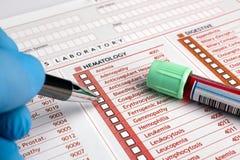 Übergeben Sie das Füllen einer Form der Analyse durch ein Blutbeispielrohr stockbild