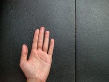 Übergeben Sie Ekzem auf schwarzem Leder mit Kopienraum Stockfotos