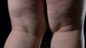 Überladene männliche Beine auf schwarzem Hintergrund, Mangel an körperlicher Tätigkeit, Cellulite stock video