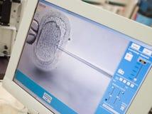 Überwachen Sie das Zeigen der zellplasmatischen Samenzellenintraeinspritzung Lizenzfreie Stockfotos