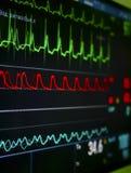 Überwachungsgerät im ICU. Lizenzfreies Stockbild