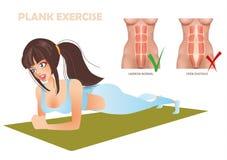 Übungsplanke kann nicht mit der Abweichung von Bauchmuskeln Diastasis sein stockfotografie