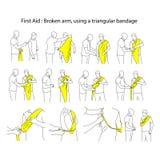 Łamana ręka używać trójgraniastego bandaża wektorowego ilustracyjnego outlin ilustracji