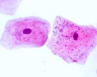 Łuskoskóre nabłonkowe komórki obraz stock