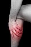 łydka ból zdjęcia stock