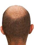 łysa głowa zdjęcie royalty free
