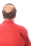 łysa głowa człowieku Zdjęcia Royalty Free