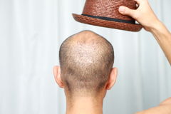 Łysy mężczyzna z kapeluszem zdjęcie royalty free