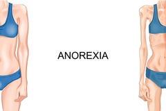 Żeńska postać z anorexia Royalty Ilustracja