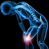 żeński kolana bólu kościec Fotografia Royalty Free