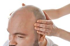 Żeńskie ręki dotyka głowę łysy dorosły mężczyzna zdjęcia stock