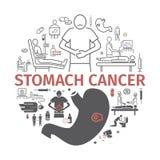 Żołądka nowotworu sztandar Objawy i diagnoza ciała guzików setu diagrama gramowego wykresu ludzkiego infographics wewnętrzni medy Zdjęcie Royalty Free