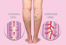 Żylakowate żyły na seniora żeńskich nogach Struktura normalne i żylakowate żyły obraz stock
