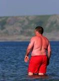 άγρυπνο ηλιακό έγκαυμα Στοκ Φωτογραφία