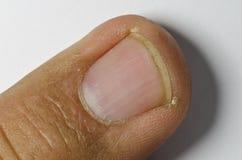 Άκρη δάχτυλων Στοκ φωτογραφία με δικαίωμα ελεύθερης χρήσης