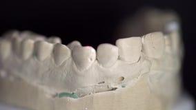 Άποψη κινηματογραφήσεων σε πρώτο πλάνο στη διαδικασία ανίχνευσης στον οδοντικό τρισδιάστατο ανιχνευτή απόθεμα βίντεο