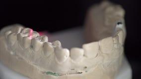 Άποψη κινηματογραφήσεων σε πρώτο πλάνο στη διαδικασία ανίχνευσης στον οδοντικό τρισδιάστατο ανιχνευτή φιλμ μικρού μήκους