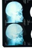 Άποψη σχεδιαγράμματος με μια ανθρώπινη ακτίνα X κρανίων Στοκ εικόνα με δικαίωμα ελεύθερης χρήσης