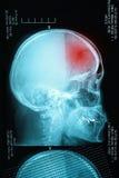Άποψη σχεδιαγράμματος με μια ανθρώπινη ακτίνα X κρανίων Στοκ Εικόνα