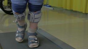 Άποψη των μικρών ποδιών αγοριών treadmill στην ειδική ορθοπεδική ένδυση επιδέσμων και ποδιών απόθεμα βίντεο
