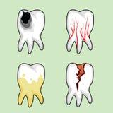 Άρρωστα δόντια Στοκ φωτογραφίες με δικαίωμα ελεύθερης χρήσης