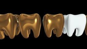 Άσπρο δόντι σε μια σειρά των χρυσών δοντιών r φιλμ μικρού μήκους