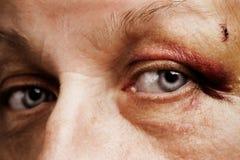 άστεγο θύμα Στοκ φωτογραφία με δικαίωμα ελεύθερης χρήσης