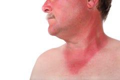 Άτομο με ένα ηλιακό έγκαυμα Στοκ εικόνα με δικαίωμα ελεύθερης χρήσης