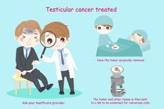 Άτομο με τον ορχικό καρκίνο διανυσματική απεικόνιση