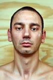Άτομο με το μολυσμένο δέρμα στο πρόσωπο Στοκ Εικόνες
