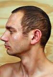 Άτομο με το μολυσμένο δέρμα στο πρόσωπο Στοκ φωτογραφία με δικαίωμα ελεύθερης χρήσης