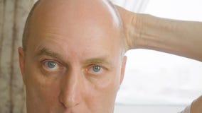 Άτομο πορτρέτου σχετικά με το φαλακρό κεφάλι με το χέρι στενό επάνω Φαλακρό κεφάλι κτυπήματος ατόμων προσώπου απόθεμα βίντεο