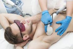 Άτομο στη διαδικασία της αφαίρεσης τρίχας λέιζερ στοκ φωτογραφία