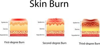 Έγκαυμα δερμάτων Τρεις βαθμοί εγκαυμάτων τύπος τραυματισμού έναντι του δέρματος, διανυσματική απεικόνιση απεικόνιση αποθεμάτων