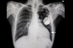ένας ασθενής με τη διεύρυνση καρδιών και έναν καρδιακό βηματοδότη Στοκ Εικόνες
