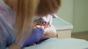 Ένας οδοντίατρος κοριτσιών εξετάζει τη στοματική κοιλότητα στον ασθενή, εργάζεται με τα ειδικά εργαλεία 4K 3840x2160 φιλμ μικρού μήκους