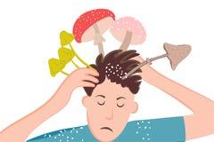 Ένα άτομο με τα μανιτάρια στο κεφάλι του Seborrhea, πιτυρίαση, ψωρίαση, μυκητιακές ασθένειες δερμάτων να είστε μπορεί σχεδιαστής  διανυσματική απεικόνιση