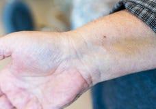 Ένα αρσενικό χέρι με ένα ίχνος σημείου μετά από να περάσει από μια stent εγκατάσταση στην καρδιά μετά από μια επίθεση καρδιών Στοκ φωτογραφία με δικαίωμα ελεύθερης χρήσης