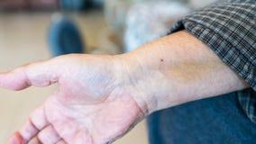 Ένα αρσενικό χέρι με ένα ίχνος σημείου μετά από να περάσει από μια stent εγκατάσταση στην καρδιά μετά από μια επίθεση καρδιών Στοκ Εικόνες