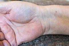 Ένα αρσενικό χέρι με ένα ίχνος σημείου μετά από να περάσει από μια stent εγκατάσταση στην καρδιά μετά από μια επίθεση καρδιών Στοκ Εικόνα