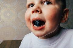 Ένα μικρό αγόρι κρατά ένα μούρο βακκινίων στο στόμα του Κατάλληλη διατροφή Φρούτα σιτηρέσιο νεολαία αναζωογόνηση Στοκ Εικόνες