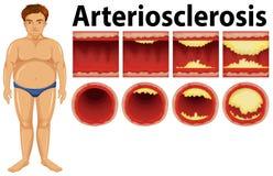 Ένα παχύ άτομο με atherosclerosis Ελεύθερη απεικόνιση δικαιώματος