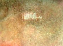 Ένα σημάδι στο δέρμα Ουλή στο σώμα Στοκ φωτογραφία με δικαίωμα ελεύθερης χρήσης
