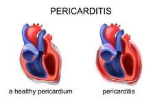 Ένα υγιές περικάρδιο, pericarditis διανυσματική απεικόνιση