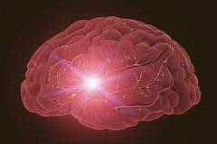 Έννοια κτυπήματος εγκεφάλου Στοκ εικόνα με δικαίωμα ελεύθερης χρήσης