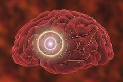 Έννοια κτυπήματος εγκεφάλου Στοκ εικόνες με δικαίωμα ελεύθερης χρήσης