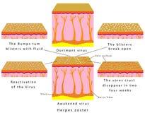 Έρπης zoster απεικόνιση αποθεμάτων