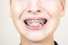 Έφηβος με τα στηρίγματα στα δόντια του στοκ εικόνες με δικαίωμα ελεύθερης χρήσης