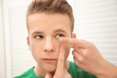 Έφηβος που βάζει το φακό επαφής στο μάτι του στοκ φωτογραφία