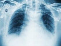 Έλεγχος ακτίνας X μετά από την καρδιακή χειρουργική επέμβαση του ασθενή Στοκ Φωτογραφίες
